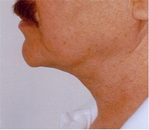 after neck liposution