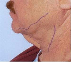 before neck liposution