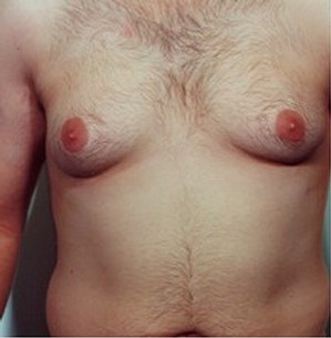 before male breast reduction
