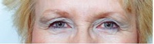 Eyelid Surgery case 44 before photo