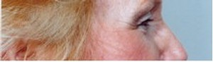 Eyelid Surgery Before Photo | Savoy, IL | Dr. G.D. Castillo
