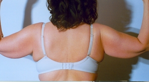 Arm Lift (Brachioplasty) Before Photo | Savoy, IL | Dr. G.D. Castillo