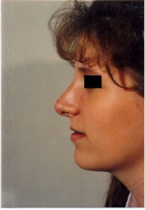 Rhinoplasty (Nose Surgery) case 52 after photo