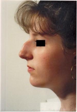 Rhinoplasty (Nose Surgery) Before Photo | Savoy, IL | Dr. G.D. Castillo