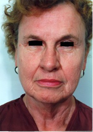 Laser Resurfacing case 53 before photo