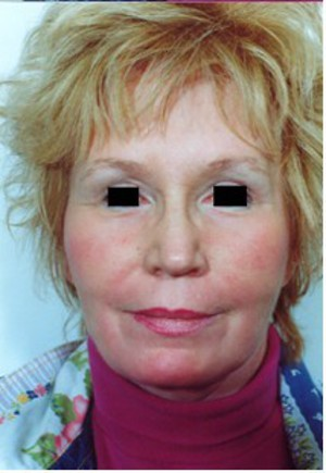 Face Lift case 54 after photo