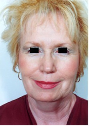 Laser Resurfacing case 54 before photo