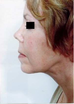 Eyelid Surgery case 56 after photo