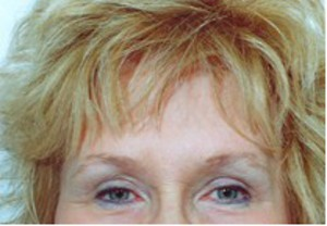Brow Lift case 58 after photo