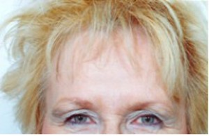 Brow Lift case 58 before photo