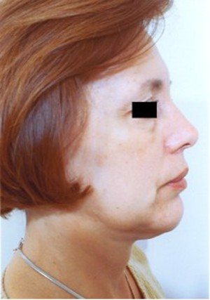 Chin Surgery case 59 after photo