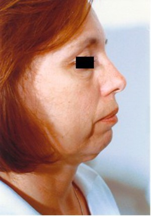 Chin Surgery case 59 before photo