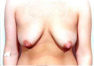 Breast Lift case 60 before photo