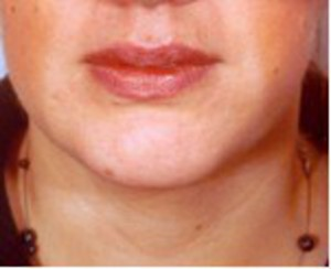 Chin Surgery case 61 after photo