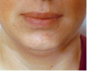 Chin Surgery Before Photo | Savoy, IL | Dr. G.D. Castillo