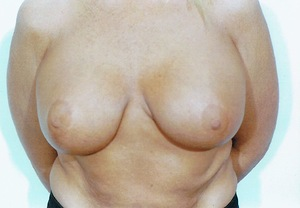 Breast Augmentation case 65 after photo