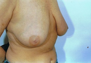 Breast Augmentation Before Photo | Savoy, IL | Dr. G.D. Castillo