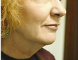 Neck Liposculpture Before Photo | Savoy, IL | Dr. G.D. Castillo