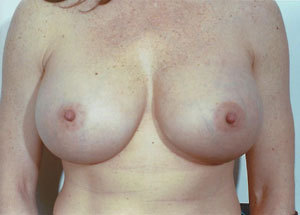 Breast Augmentation After Photo | Savoy, IL | Dr. G.D. Castillo