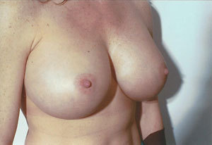 Breast Augmentation After Photo | Savoy, IL | Dr. G.D. Castillo