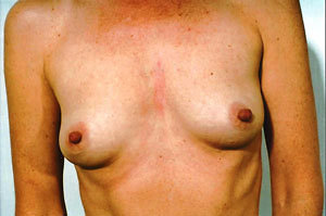 Breast Augmentation case 76 before photo