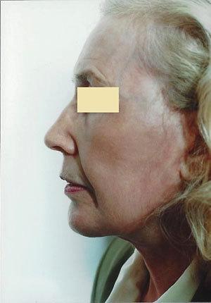 Face Lift After Photo   Savoy, IL   Dr. G.D. Castillo