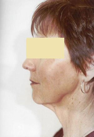 Face Lift Before Photo | Savoy, IL | Dr. G.D. Castillo