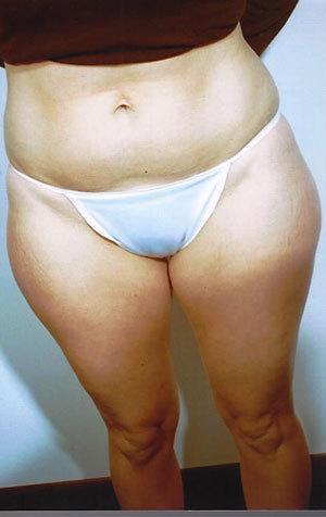 Liposuction case 82 before photo