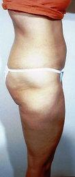 Liposuction After Photo | Savoy, IL | Dr. G.D. Castillo