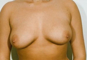 Breast Reduction case 84 after photo