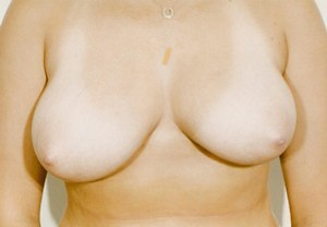 Breast Reduction case 84 before photo