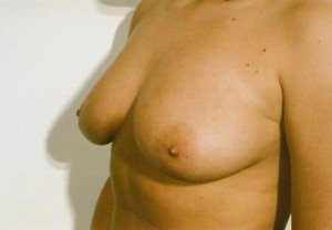 Breast Reduction After Photo | Savoy, IL | Dr. G.D. Castillo
