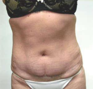 Tummy Tuck case 85 after photo