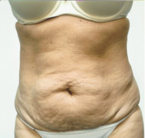 Tummy Tuck case 85 before photo