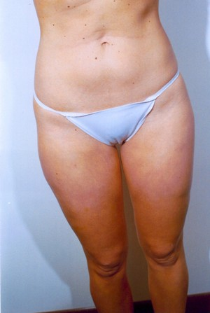 Liposuction case 11 after photo