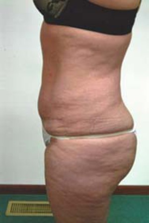 Tummy Tuck After Photo | Savoy, IL | Dr. G.D. Castillo