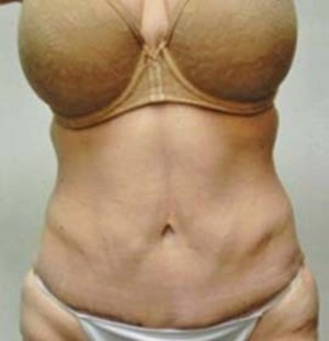 Tummy Tuck case 86 after photo