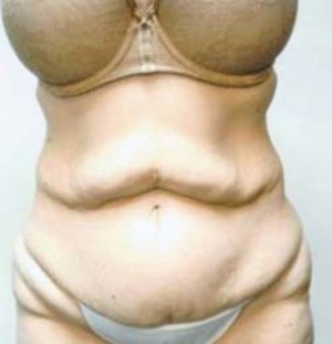 Tummy Tuck case 86 before photo