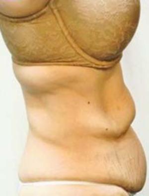 Tummy Tuck Before Photo | Savoy, IL | Dr. G.D. Castillo