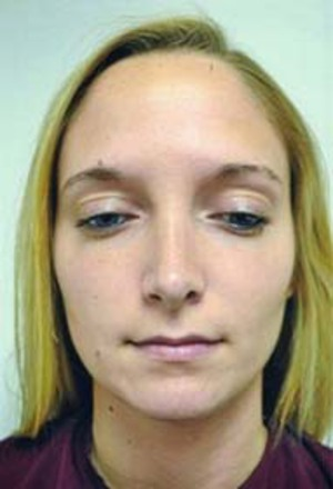 Rhinoplasty (Nose Surgery) case 88 after photo