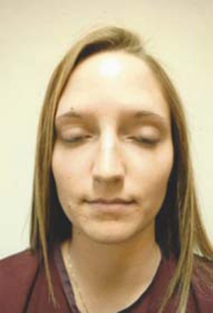 Rhinoplasty (Nose Surgery) case 88 before photo