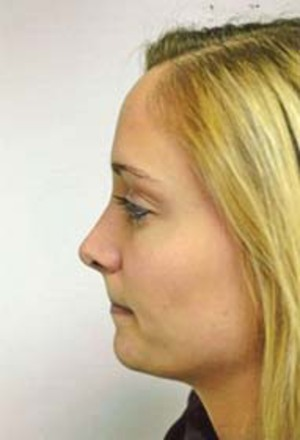 Rhinoplasty (Nose Surgery) After Photo | Savoy, IL | Dr. G.D. Castillo