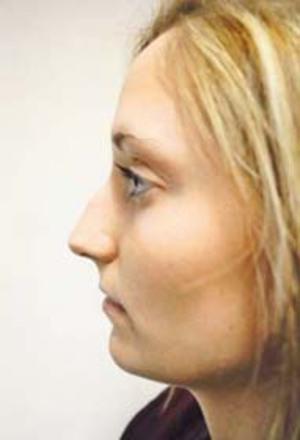 Rhinoplasty (Nose Surgery) Before Photo | Savoy, IL | Dr. G.D. Castillo