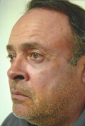 Eyelid Surgery After Photo | Savoy, IL | Dr. G.D. Castillo