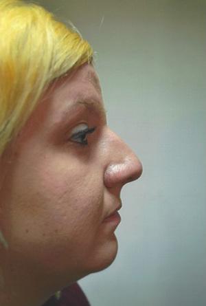 Rhinoplasty (Nose Surgery) Before Photo   Savoy, IL   Dr. G.D. Castillo