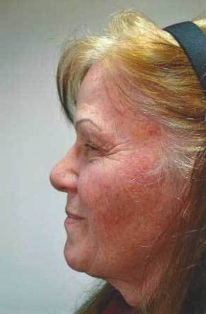 Laser Resurfacing case 93 before photo