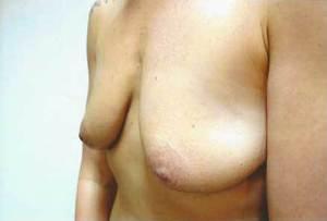 Breast Lift Before Photo | Savoy, IL | Dr. G.D. Castillo