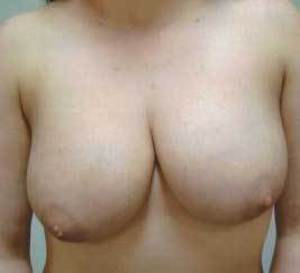 Breast Reduction Before Photo | Savoy, IL | Dr. G.D. Castillo