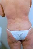 Liposuction After Photo   Savoy, IL   Dr. G.D. Castillo