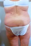 Liposuction Before Photo | Savoy, IL | Dr. G.D. Castillo